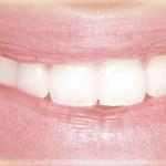 L'avantage de la pose des implants dentaires